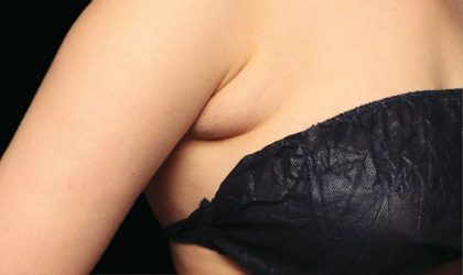 Bra Fat Before & After Patient #4244