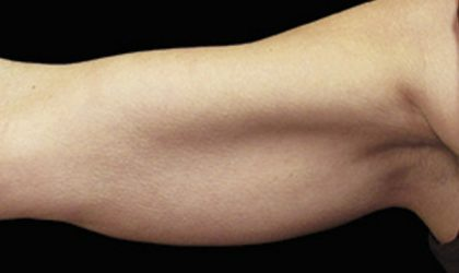 Upper Arms Before & After Patient #4311