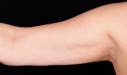 Upper Arms Before & After Patient #4312
