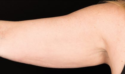 Upper Arms Before & After Patient #4300