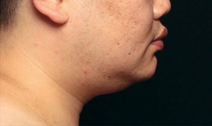 Chin Before & After Patient #4267