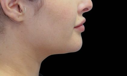 Chin Before & After Patient #4268