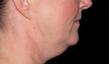 Chin Before & After Patient #4245