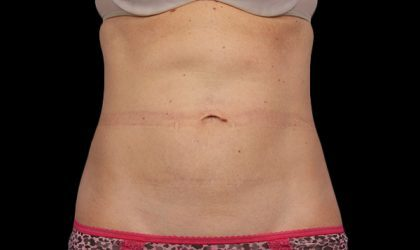 Abdomen Before & After Patient #4230
