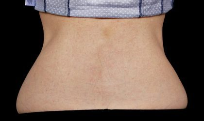 Flank/Side Before & After Patient #4285