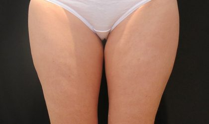 Thigh Before & After Patient #4298