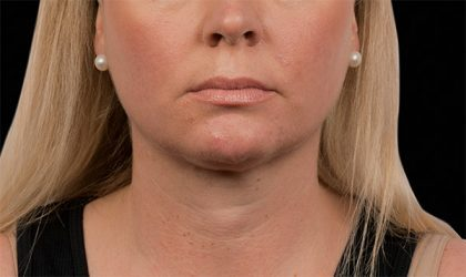 Chin Before & After Patient #4264