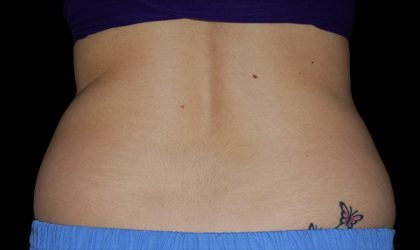 Flank/Side Before & After Patient #4286