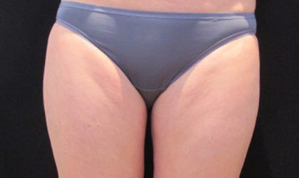 Thigh Before & After Patient #4299