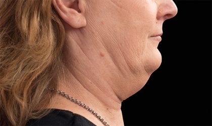 Chin Before & After Patient #4265