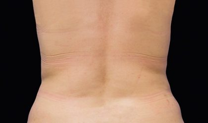 Flank/Side Before & After Patient #4287