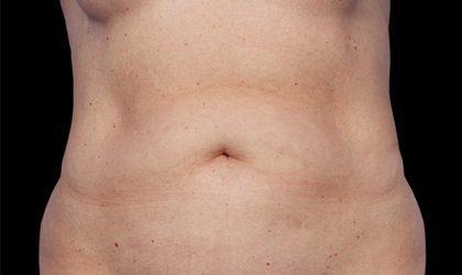 Abdomen Before & After Patient #4233