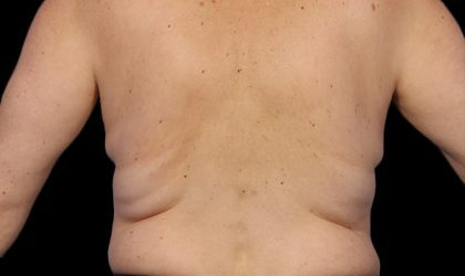 Flank/Side Before & After Patient #4288