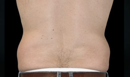 Flank/Side Before & After Patient #4284